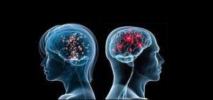 5 Misteri Otak Manusia Yang Harus Anda Tahu!